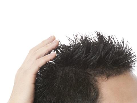 4つのポイントで改善!抜け毛や薄毛の原因にサヨナラする方法