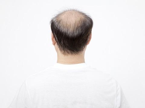 男性の薄毛は防げる!メンズ頭皮ケアのコツ