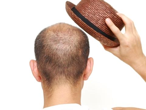薄毛でも似合う髪型を探したい!どうすればいいの?