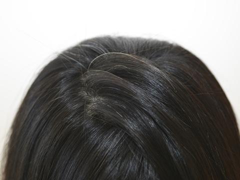 白髪と不妊の関係性を見る