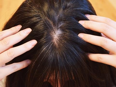 あなたの頭皮は健康?頭皮の状態チェック方法