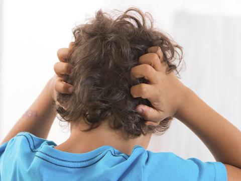 頭皮がかゆくなる原因と予防策