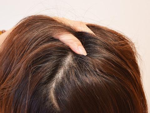 【頭皮クレンジング】身近なアレで頭の臭い対策