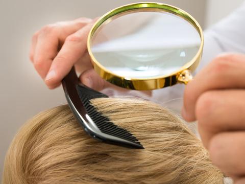 薄毛予防は頭皮から!女性の抜け毛を防ぐための頭皮ケア実践法